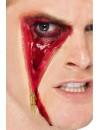 Cicatrice avec fermeture éclair